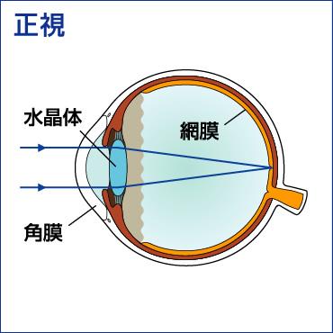 息子の乱視に気付けたのは、たまたま結膜炎にかかったから。